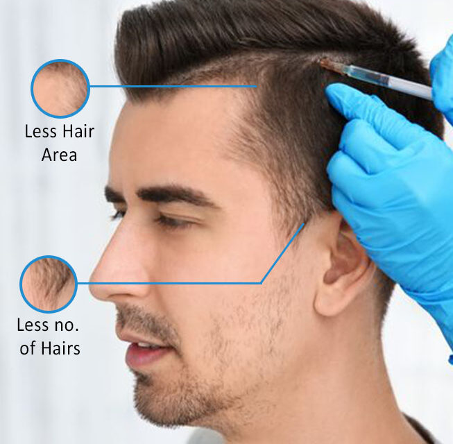 Hair treatment / PRP / Hair transplant – All You Need To Know!