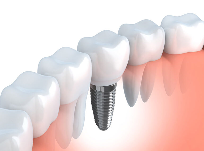 A Comprehensive Guide For Dental implant That You Should Know Before Undergoing Implant